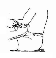 三头肌腱反射检查法