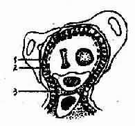 膜性肾小球肾炎模式图