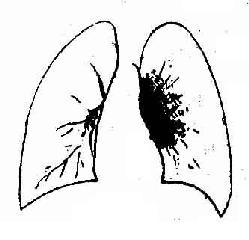 支气管淋巴结结核炎症型