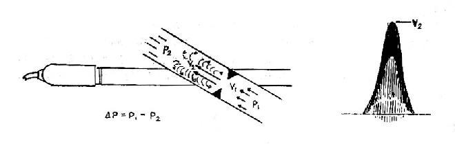 脉冲多普勒湍流频谱