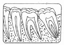 正常牙槽骨