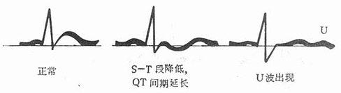 低钾血症的心电图变化
