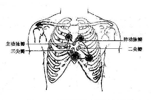 心臟各瓣膜在胸壁上的投影點及其聽診部位