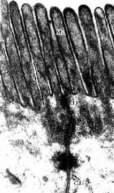 小鼠小肠上皮细胞电镜像