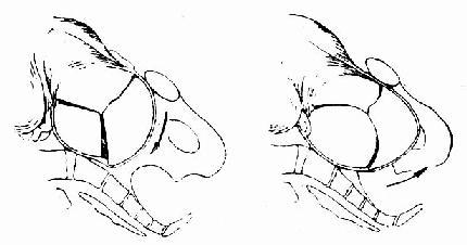 扁平骨盆儿头入盆经过示意图