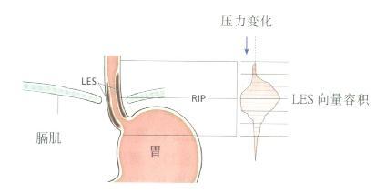 LES穿过膈肌示意图,LES压力轮廓用向量容积表示