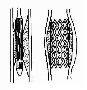 Inoue球囊扩张二尖瓣口示意图