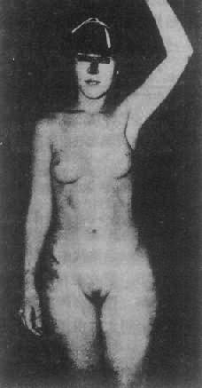 睾丸女性化综合征患者(核型46,XY)