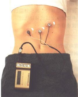 EGG电极放置位置