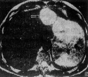 正常胆襄、胆管造影示意图