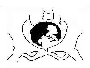 膀胱癌 膀胱腔内充盈缺损