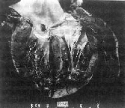 特发性巨细胞性心肌炎