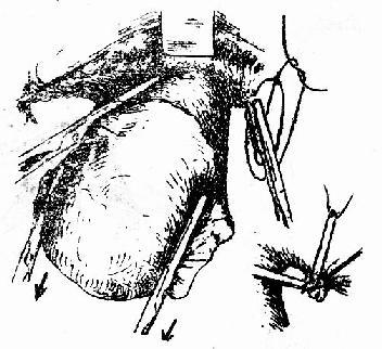 處理宮頸旁組織右下插圖