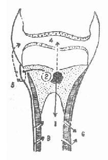胫骨上端急性化脓性骨髓炎扩散途径