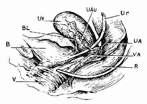 子宮局部解剖面觀