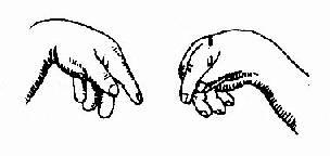 手足搐搦症的手痙攣