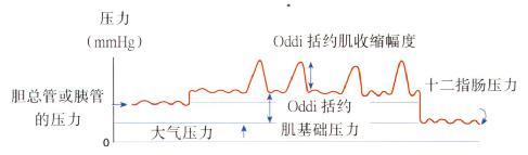 与测压记录相关的Oddi括约肌压力示意