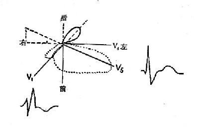 右束支传导阻滞的横面QRS向量环示意图