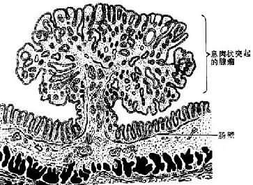 肠的息肉状腺瘤模式图