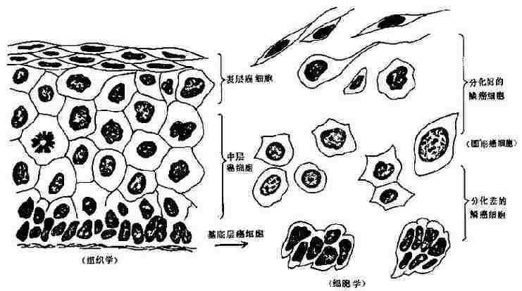 鱗癌組織學與細胞學對照示意圖