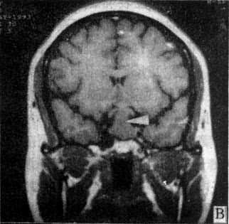 MRI掃描SE序列圖像