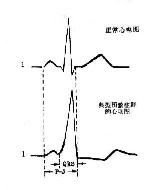 典型预激症候群心电图和正常心电图的比较