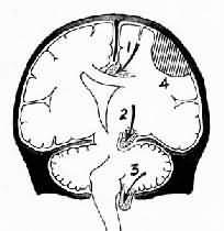 脑疝模式图