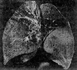 大叶性肺炎