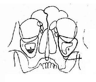 慢性上颌窦炎