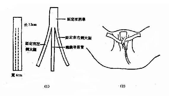 女病人留置导尿管固定法