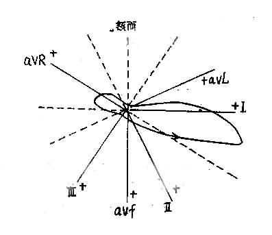 左室肥厚时QRS向量数及T数图