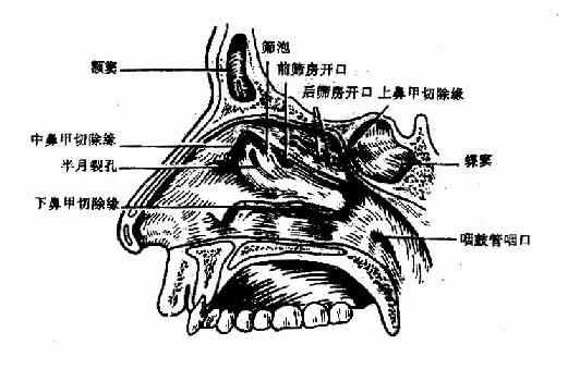 鼻腔外侧壁(上、中、下鼻甲部分去除)