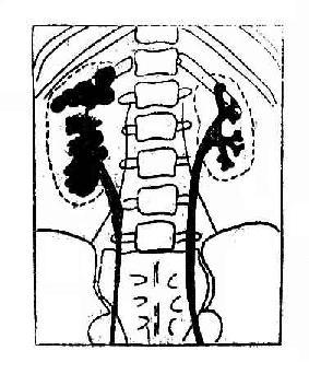 右肾结核逆行肾盂造影