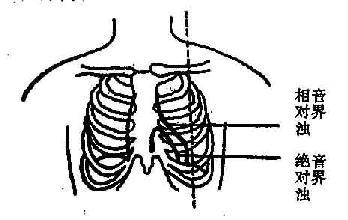 心脏的绝对浊音界和相对浊音界示意图