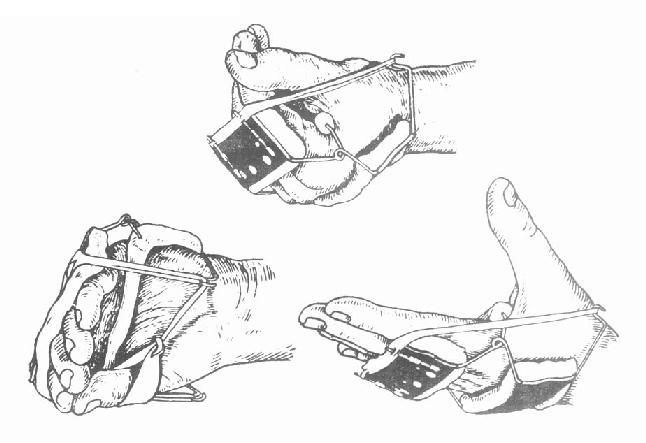 掌指关节屈曲弹性夹板