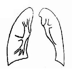 室间隔缺损并发肺循环高压