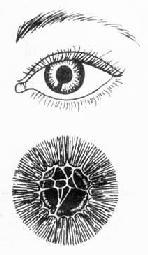 虹膜缺损与瞳孔膜存留