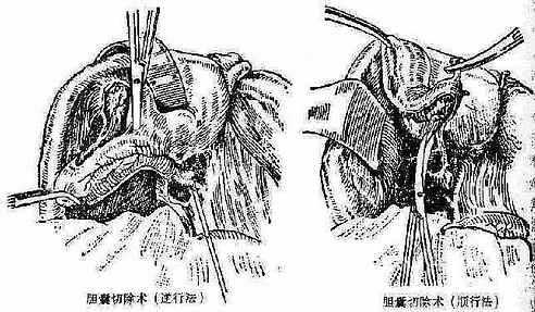 胆囊切除术