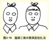 面部三角巾包扎法