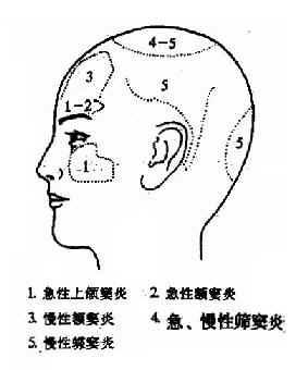 鼻窦炎引起的头痛部位