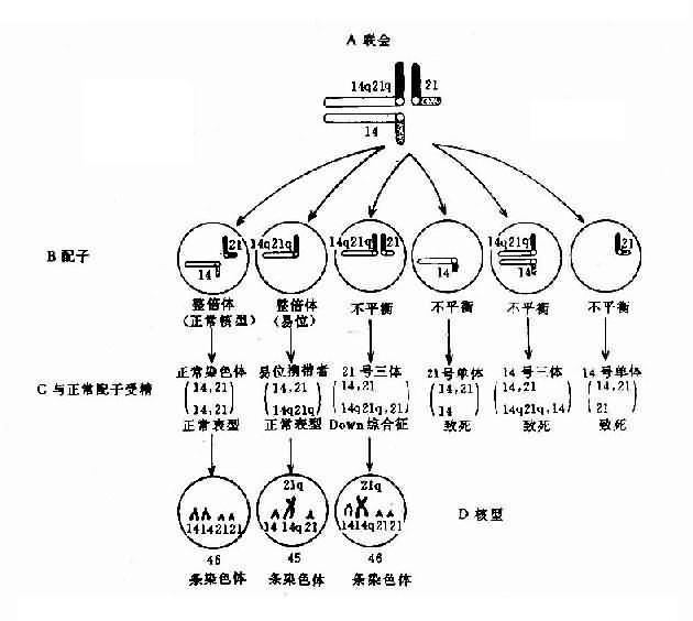 罗氏易位(14q21q)杂合体减数分裂时染色体的联会