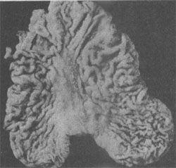 早期胃癌(表淺隆起型Ⅱa)
