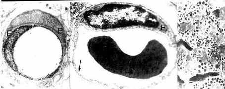 毛细血管电镜像