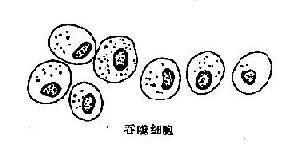 高分化腺癌细胞及其鉴别诊断