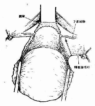 游离子宫体