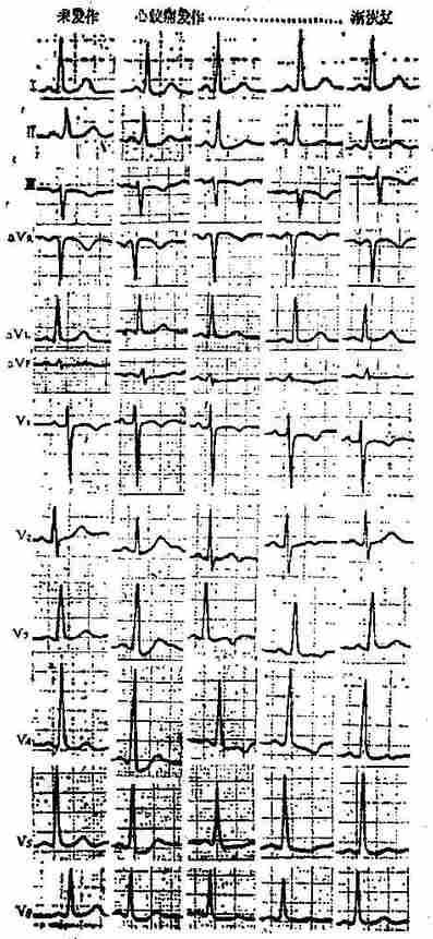 心绞痛发作心电图演变