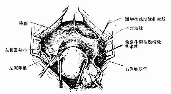 阔韧带前叶和腹膜反折全部切开及右侧输尿管的走向示意图