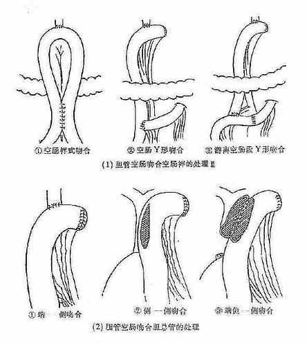 胆总管空肠多种形式吻合