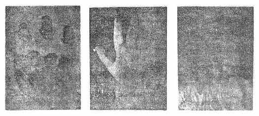 左手中、环、小指再植