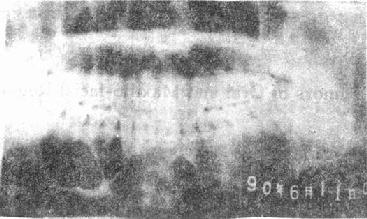 X片示:造釉细胞瘤(下颌体部)